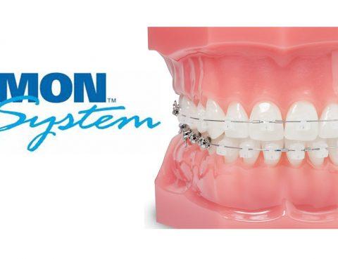 sistema-damon-clidecem3