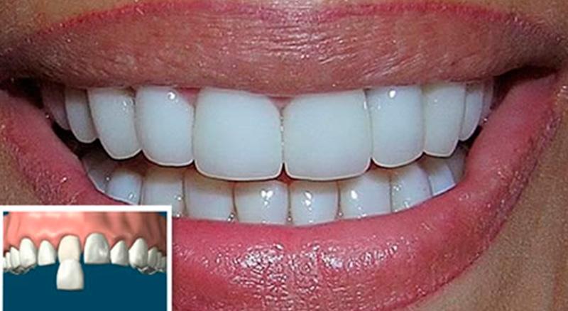 carillas-dentales-2