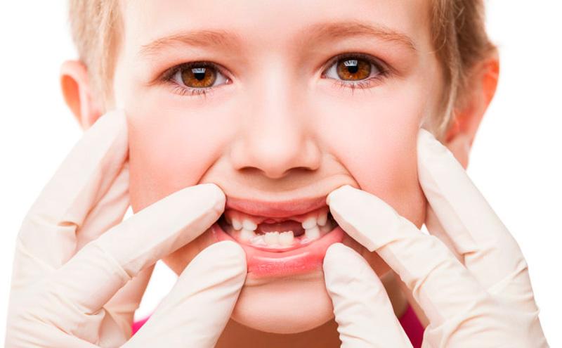 traumatismo-dental-1