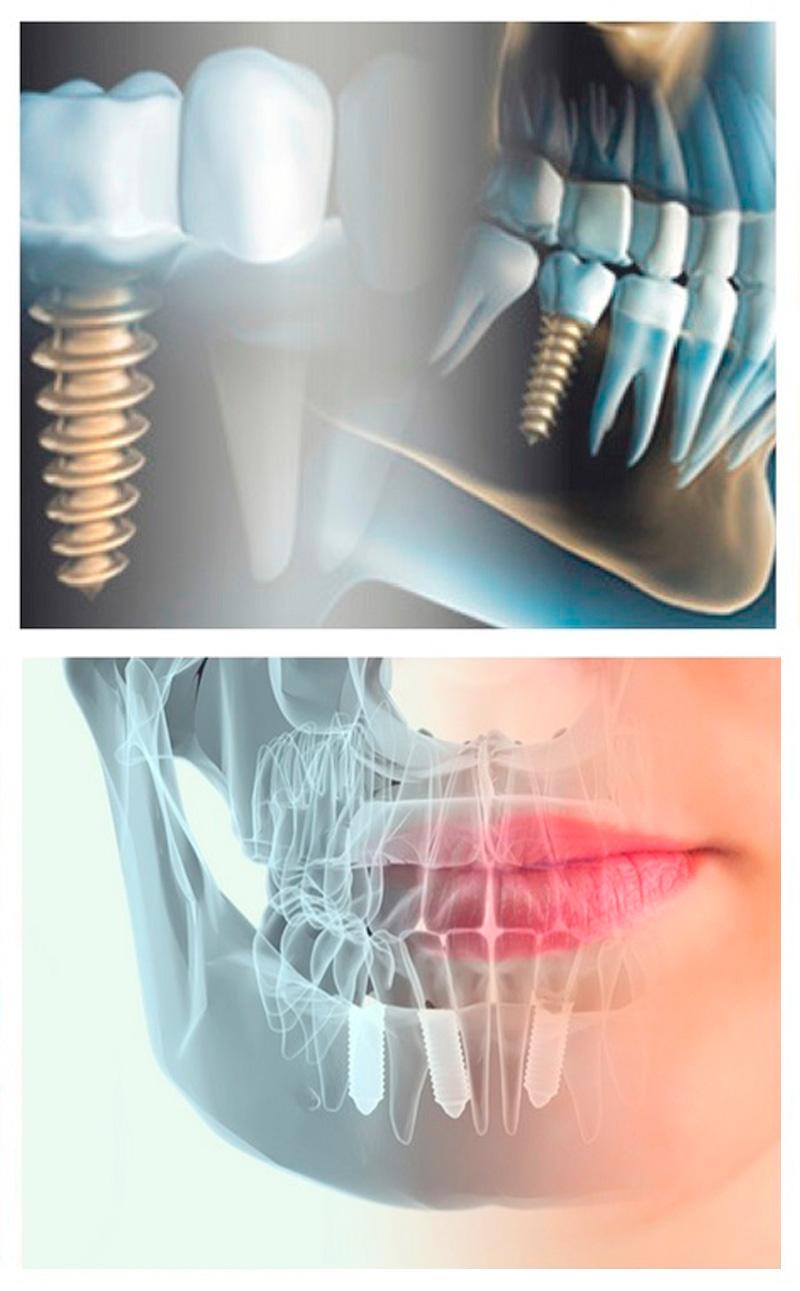 implantologia-2