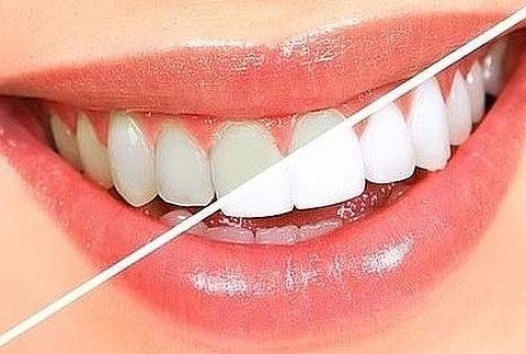 Clínica Dental Clidecem - Dentista de Confianza en Puente Genil - Color Dientes