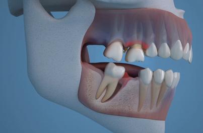 Clínica Dental Clidecem - Dentista de Confianza en Puente Genil - Dientes
