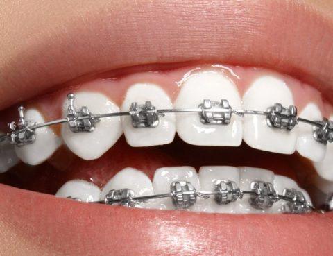 Clínica Dental Clidecem - Dentista de Confianza en Puente Genil - Ortodoncia