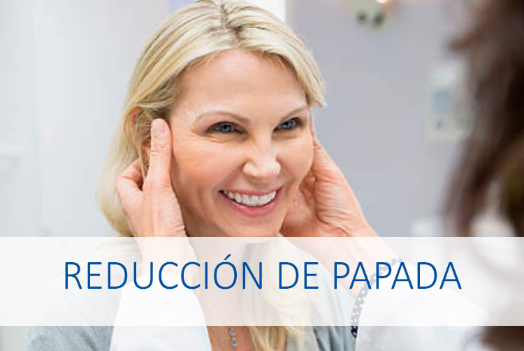 reduccion-papada2